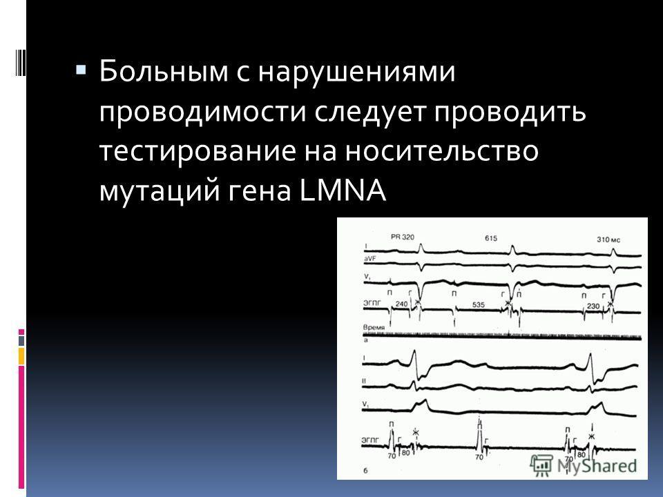 Больным с нарушениями проводимости следует проводить тестирование на носительство мутаций гена LMNA