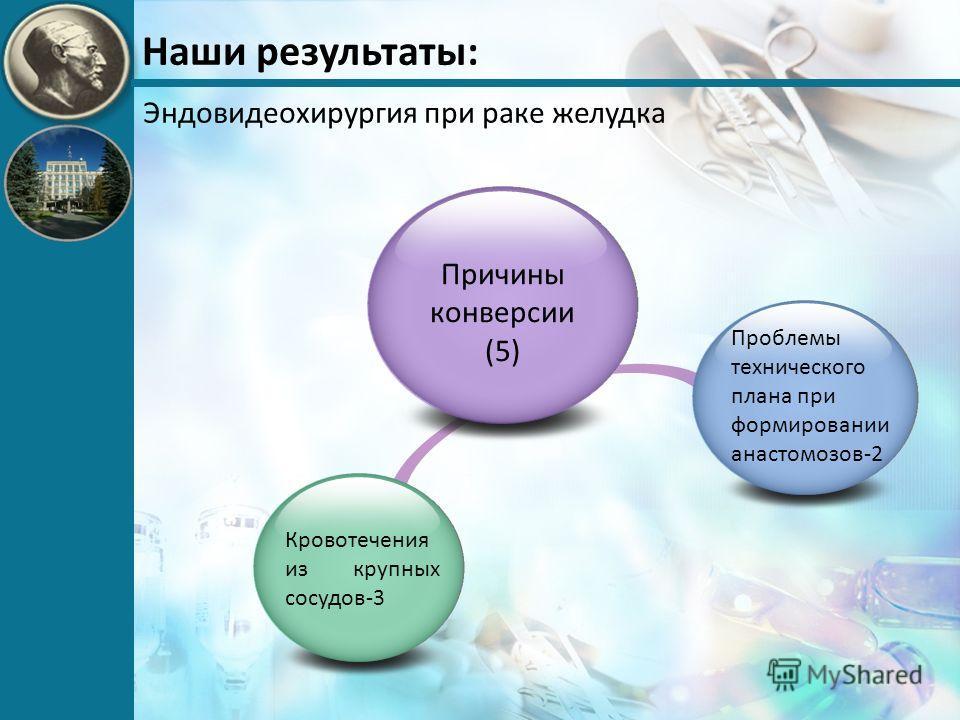 Наши результаты: Эндовидеохирургия при раке желудка Причины конверсии (5) Кровотечения из крупных сосудов-3 Проблемы технического плана при формировании анастомозов-2