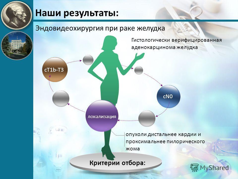 Наши результаты: Эндовидеохирургия при раке желудка Критерии отбора: cT1b-T3 локализация cN0 опухоли дистальнее кардии и проксимальнее пилорического жома Гистологически верифицированная аденокарцинома желудка