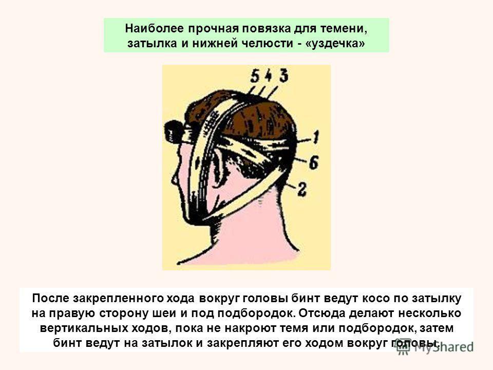 После закрепленного хода вокруг головы бинт ведут косо по затылку на правую сторону шеи и под подбородок. Отсюда делают несколько вертикальных ходов, пока не накроют темя или подбородок, затем бинт ведут на затылок и закрепляют его ходом вокруг голов