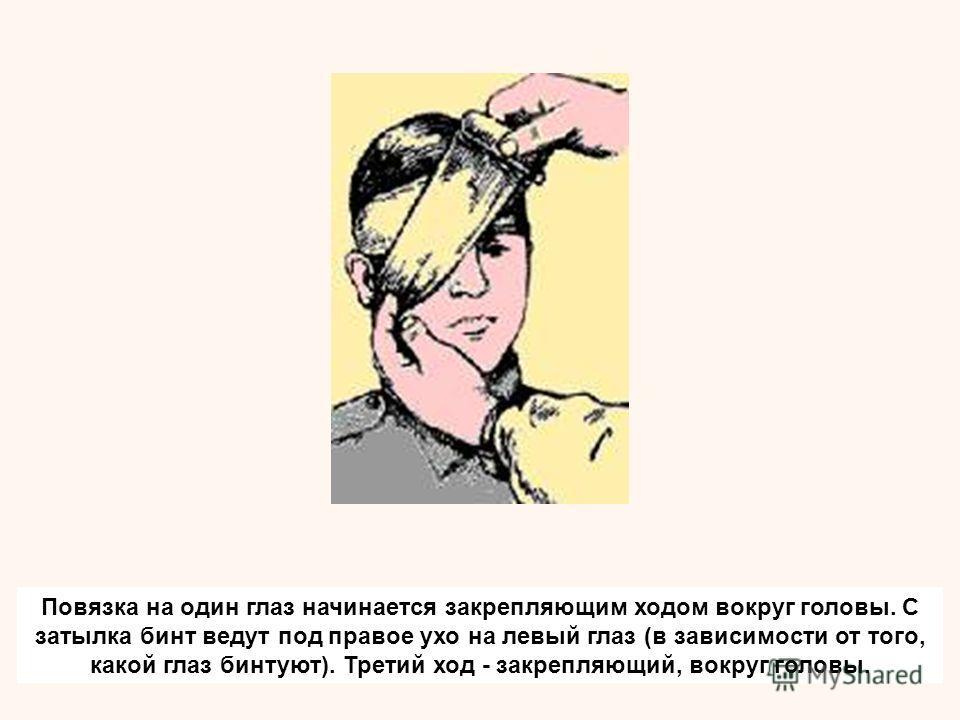 Повязка на один глаз начинается закрепляющим ходом вокруг головы. С затылка бинт ведут под правое ухо на левый глаз (в зависимости от того, какой глаз бинтуют). Третий ход - закрепляющий, вокруг головы.