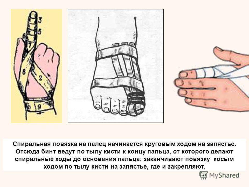 Спиральная повязка на палец начинается круговым ходом на запястье. Отсюда бинт ведут по тылу кисти к концу пальца, от которого делают спиральные ходы до основания пальца; заканчивают повязку косым ходом по тылу кисти на запястье, где и закрепляют.