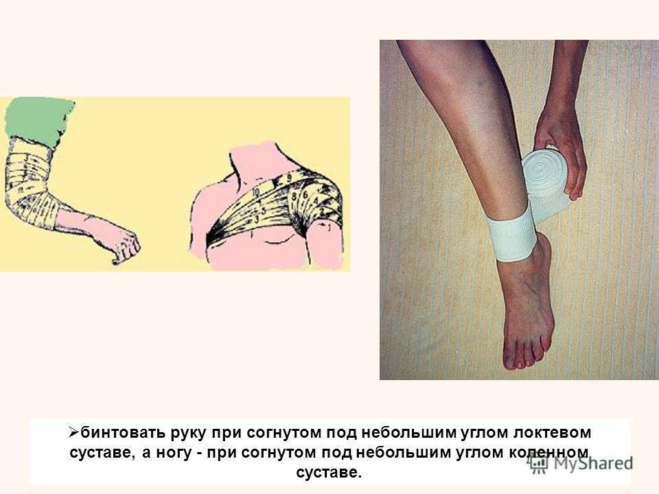 бинтовать руку при согнутом под небольшим углом локтевом суставе, а ногу - при согнутом под небольшим углом коленном суставе.