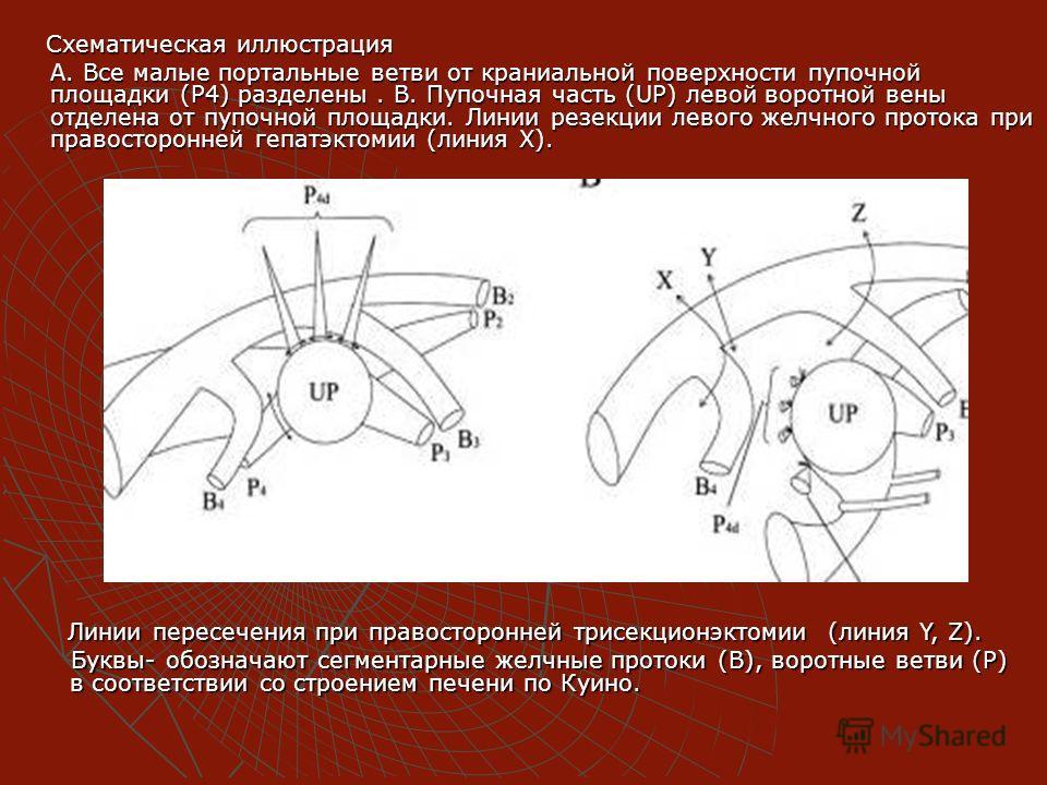 Схематическая иллюстрация Схематическая иллюстрация А. Все малые портальные ветви от краниальной поверхности пупочной площадки (Р4) разделены. В. Пупочная часть (UP) левой воротной вены отделена от пупочной площадки. Линии резекции левого желчного пр