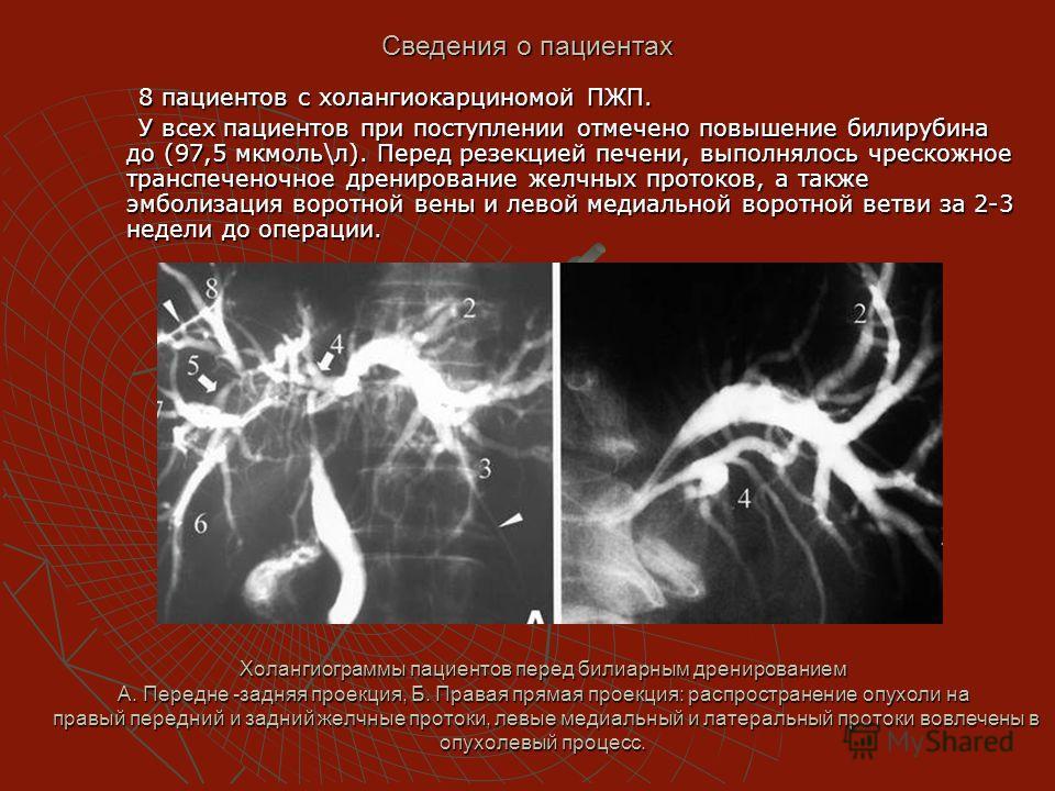 Холангиограммы пациентов перед билиарным дренированием А. Передне -задняя проекция, Б. Правая прямая проекция: распространение опухоли на правый передний и задний желчные протоки, левые медиальный и латеральный протоки вовлечены в опухолевый процесс.