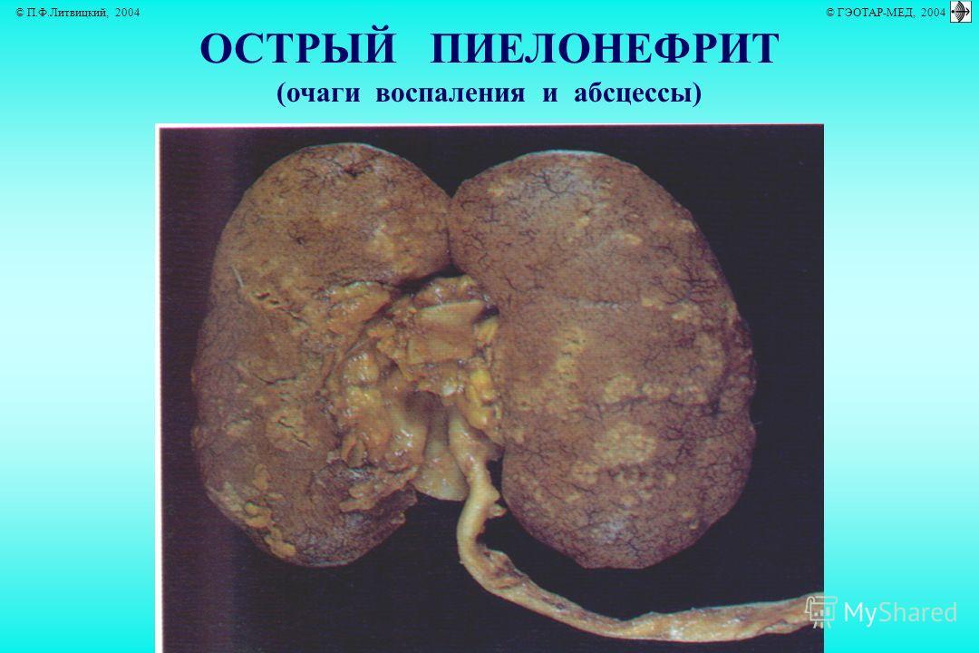 © П.Ф.Литвицкий, 2004 © ГЭОТАР-МЕД, 2004 ОСТРЫЙ ПИЕЛОНЕФРИТ (очаги воспаления и абсцессы)