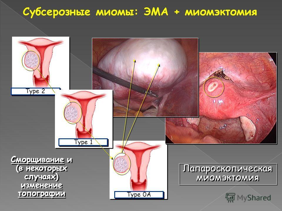 Миомэктомия фото