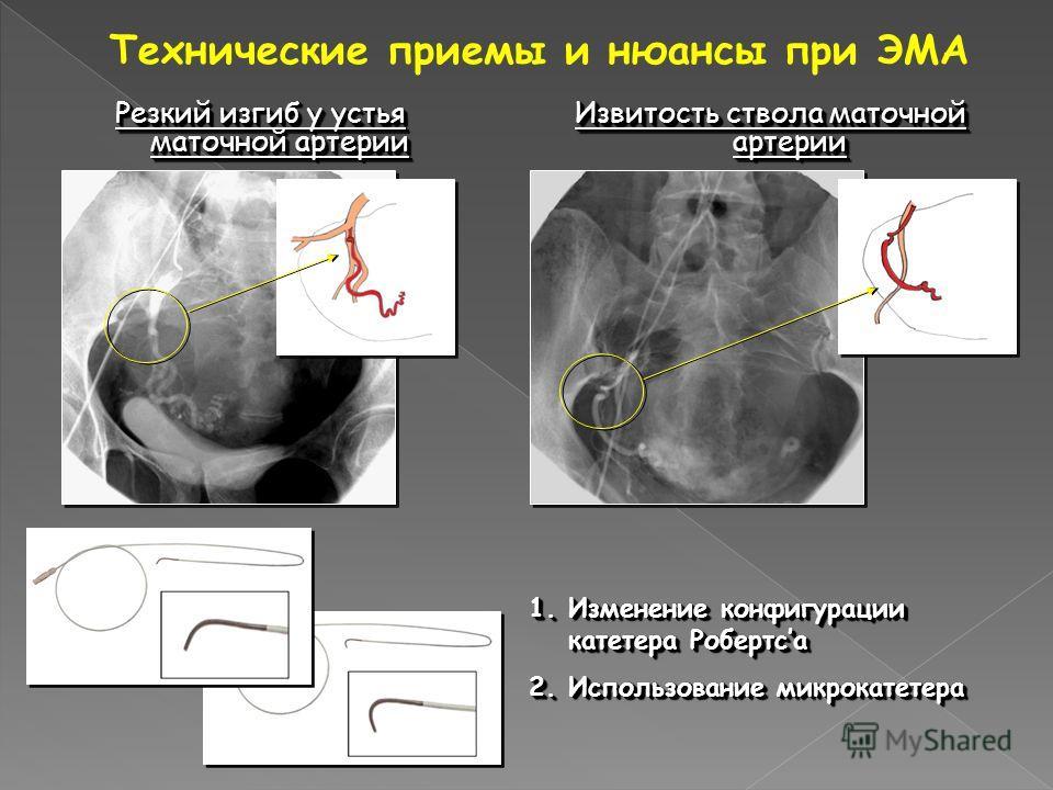 Технические приемы и нюансы при ЭМА Резкий изгиб у устья маточной артерии Извитость ствола маточной артерии 1.Изменение конфигурации катетера Робертса 2.Использование микрокатетера 1.Изменение конфигурации катетера Робертса 2.Использование микрокатет