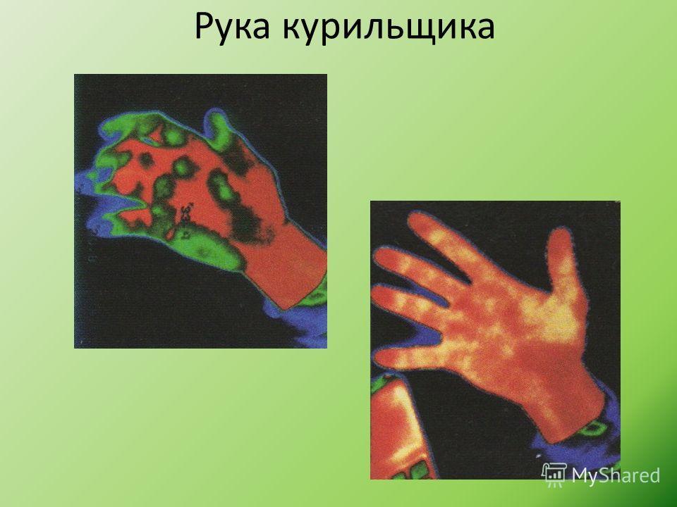 Рука курильщика