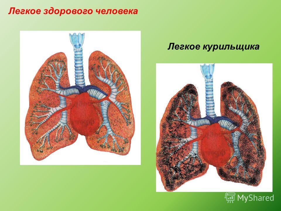Легкое здорового человека Легкое курильщика