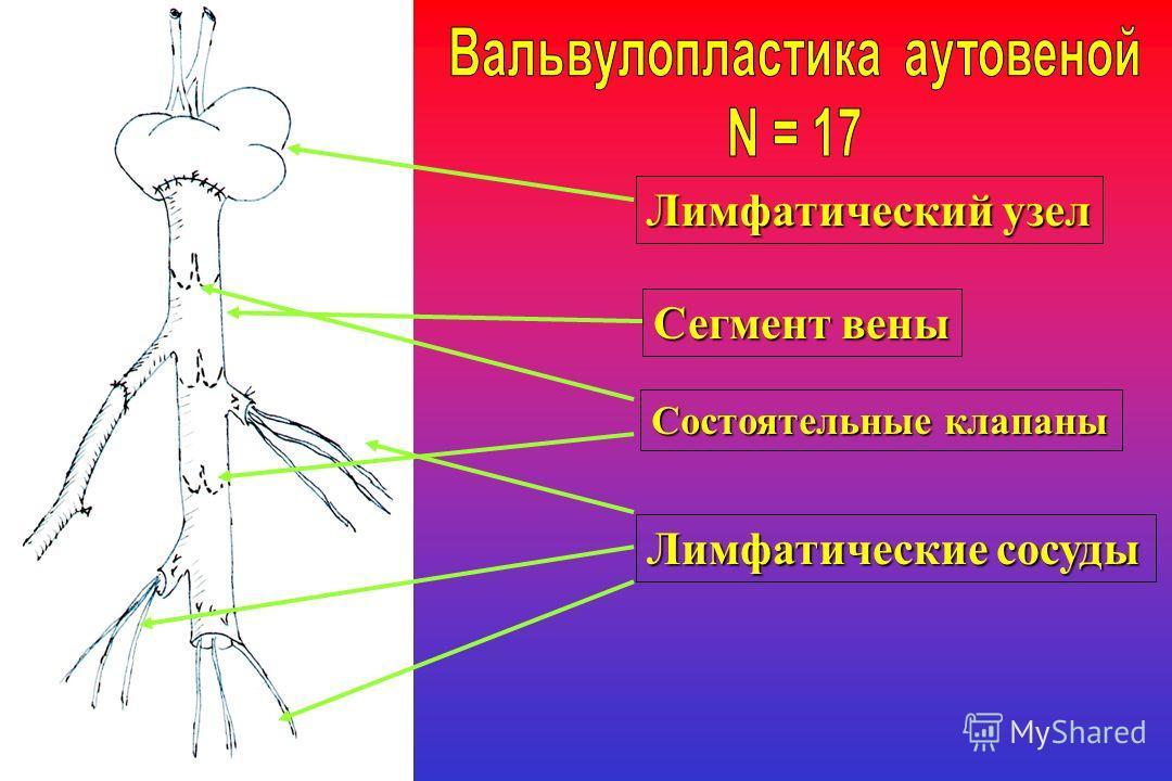 Лимфатический узел Сегмент вены Лимфатические сосуды Состоятельные клапаны