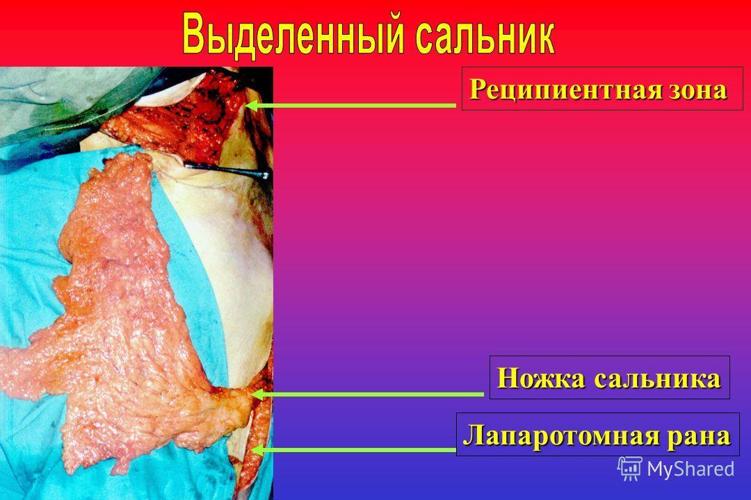 Реципиентная зона Ножка сальника Лапаротомная рана