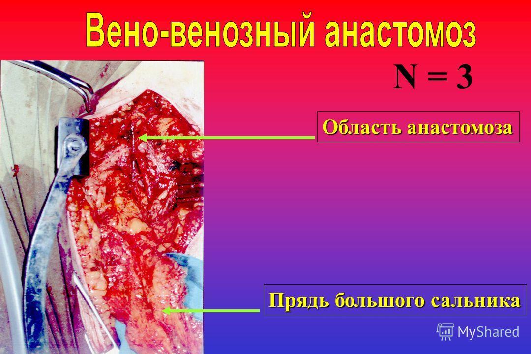 Область анастомоза Прядь большого сальника N = 3