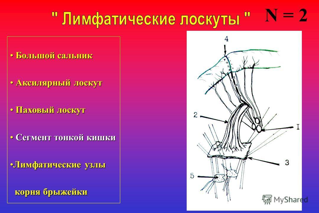 Большой сальник Большой сальник Аксилярный лоскут Аксилярный лоскут Паховый лоскут Паховый лоскут Сегмент тонкой кишки Сегмент тонкой кишки Лимфатические узлыЛимфатические узлы корня брыжейки корня брыжейки N = 2