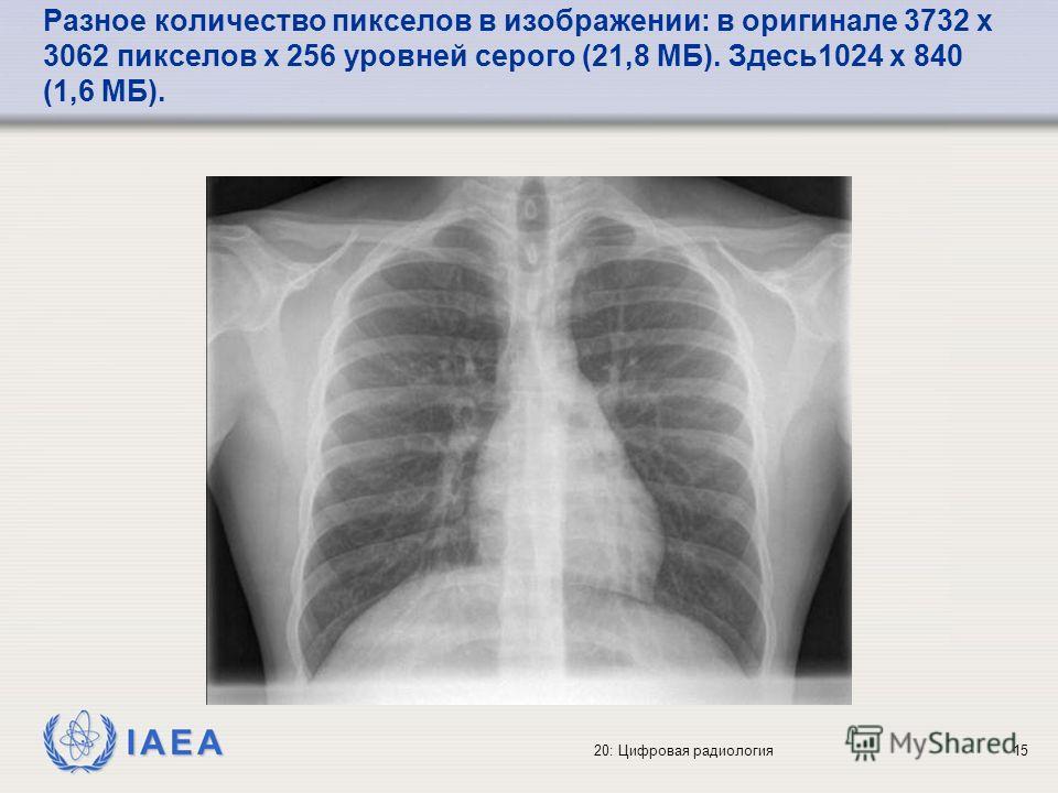 IAEA 20: Цифровая радиология15 Разное количество пикселов в изображении: в оригинале 3732 x 3062 пикселов x 256 уровней серого (21,8 МБ). Здесь1024 x 840 (1,6 MБ).