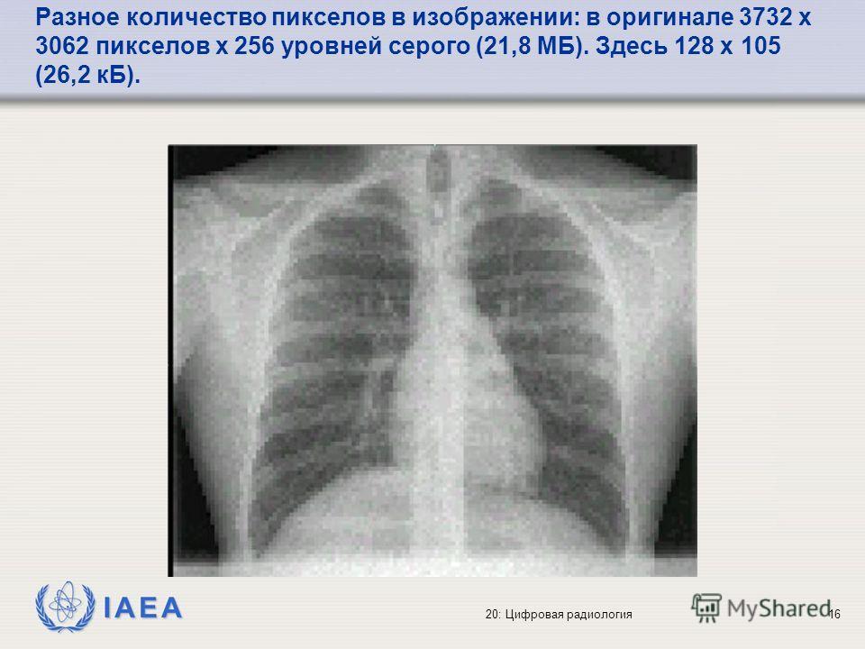 IAEA 20: Цифровая радиология16 Разное количество пикселов в изображении: в оригинале 3732 x 3062 пикселов x 256 уровней серого (21,8 МБ). Здесь 128 x 105 (26,2 кБ).