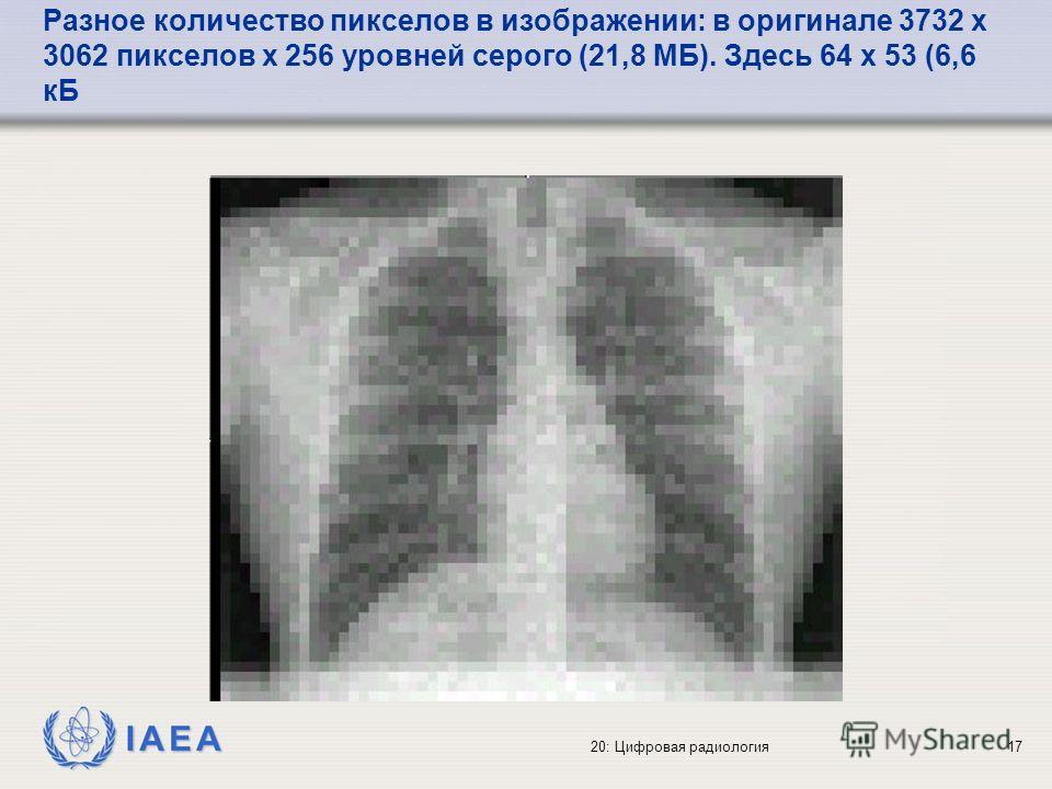 IAEA 20: Цифровая радиология17 Разное количество пикселов в изображении: в оригинале 3732 x 3062 пикселов x 256 уровней серого (21,8 МБ). Здесь 64 x 53 (6,6 кБ