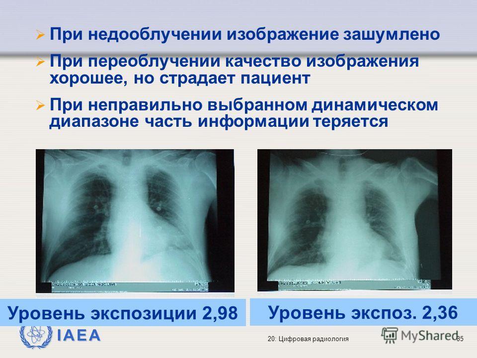 IAEA 20: Цифровая радиология35 При недооблучении изображение зашумлено При переоблучении качество изображения хорошее, но страдает пациент При неправильно выбранном динамическом диапазоне часть информации теряется Уровень экспозиции 2,98 Уровень эксп