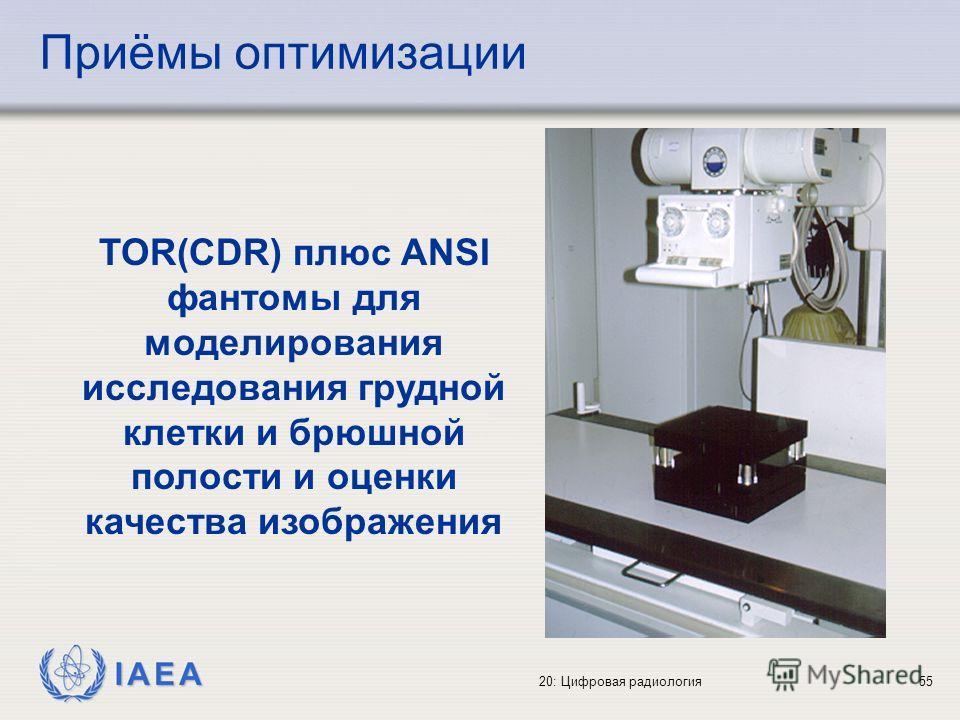IAEA 20: Цифровая радиология55 TOR(CDR) плюс ANSI фантомы для моделирования исследования грудной клетки и брюшной полости и оценки качества изображения Приёмы оптимизации