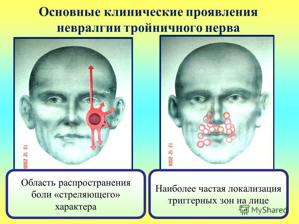 Основные клинические проявления невралгии тройничного нерва Область распространения боли «стреляющего» характера Наиболее частая локализация триггерных зон на лице