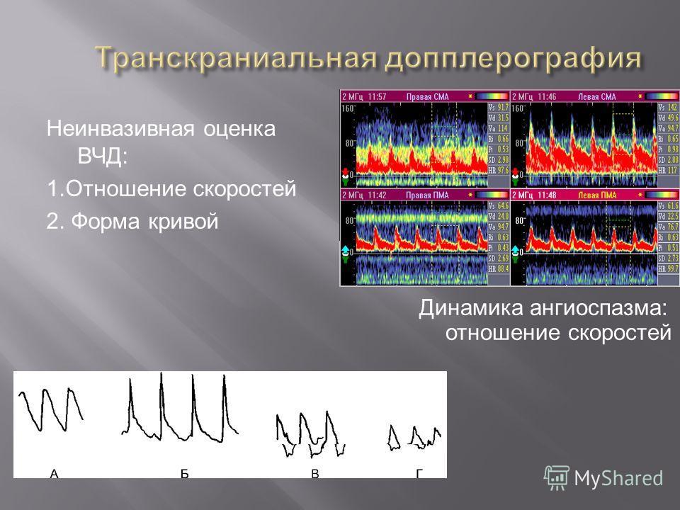 Неинвазивная оценка ВЧД: 1.Отношение скоростей 2. Форма кривой Динамика ангиоспазма: отношение скоростей