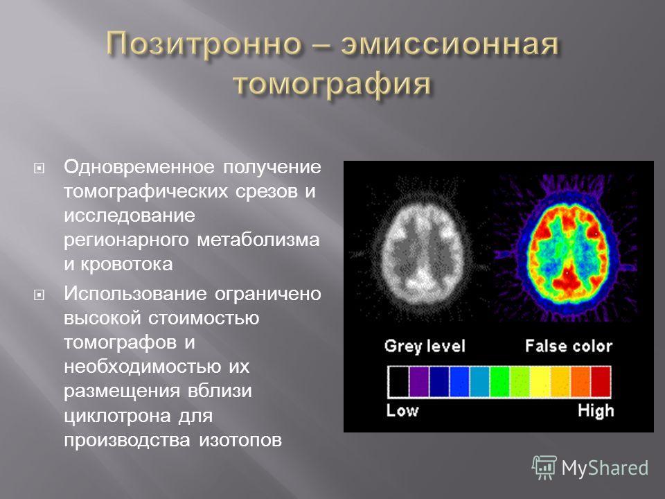 Одновременное получение томографических срезов и исследование регионарного метаболизма и кровотока Использование ограничено высокой стоимостью томографов и необходимостью их размещения вблизи циклотрона для производства изотопов