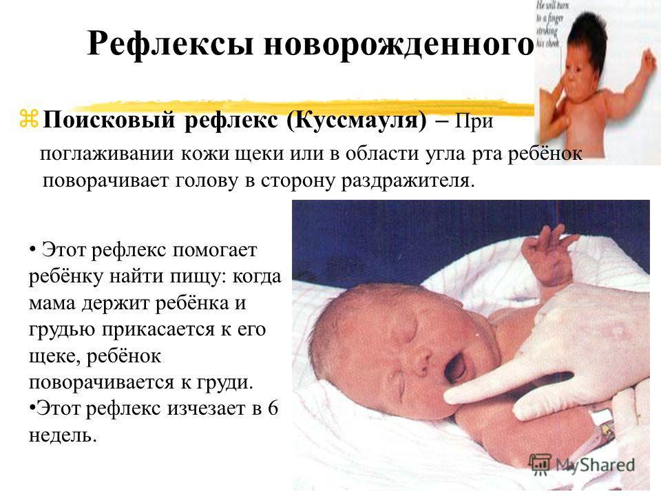 Рефлексы новорожденного zПоисковый рефлекс (Куссмауля) – При поглаживании кожи щеки или в области угла рта ребёнок поворачивает голову в сторону раздражителя. Этот рефлекс помогает ребёнку найти пищу: когда мама держит ребёнка и грудью прикасается к