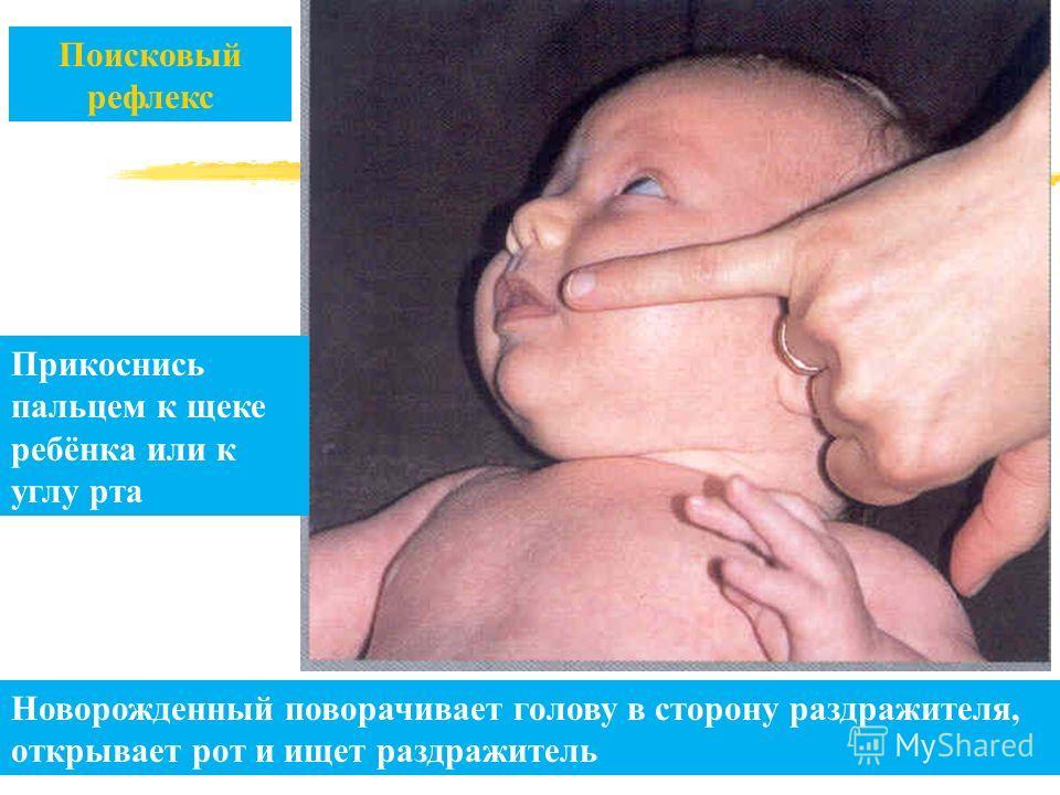 Поисковый рефлекс Прикоснись пальцем к щеке ребёнка или к углу рта Новорожденный поворачивает голову в сторону раздражителя, открывает рот и ищет раздражитель