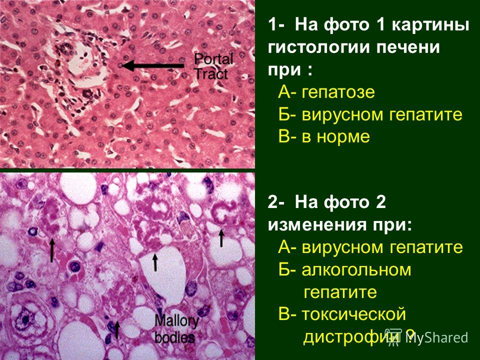 1- На фото 1 картины гистологии печени при : А- гепатозе Б- вирусном гепатите В- в норме 2- На фото 2 изменения при: А- вирусном гепатите Б- алкогольном гепатите В- токсической дистрофии ?