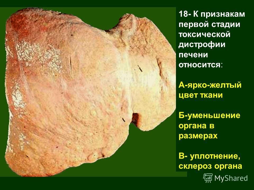 18- К признакам первой стадии токсической дистрофии печени относится: А-ярко-желтый цвет ткани Б-уменьшение органа в размерах В- уплотнение, склероз органа