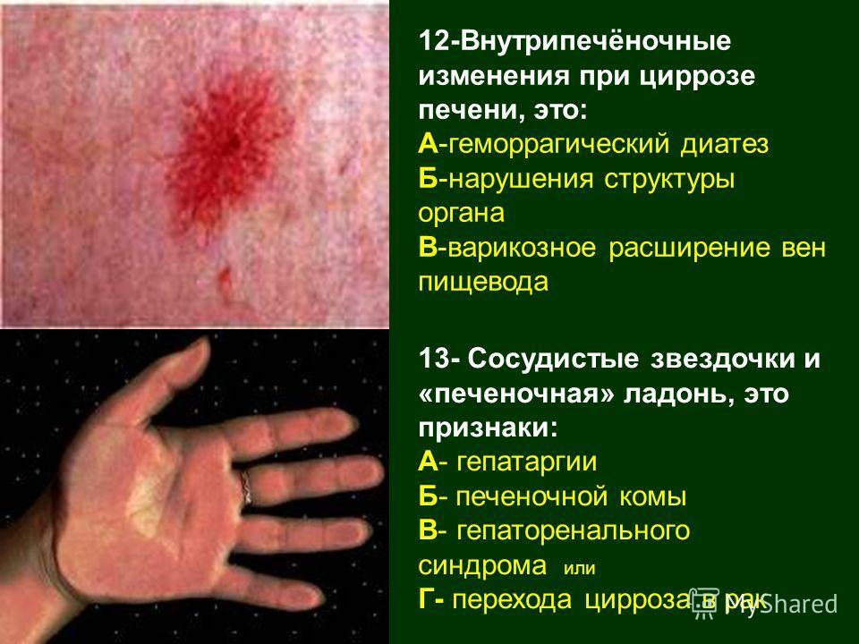12-Внутрипечёночные изменения при циррозе печени, это: А-геморрагический диатез Б-нарушения структуры органа В-варикозное расширение вен пищевода 13- Сосудистые звездочки и «печеночная» ладонь, это признаки: А- гепатаргии Б- печеночной комы В- гепато