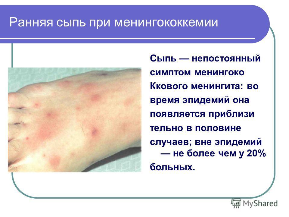 Ранняя сыпь при менингококкемии Сыпь непостоянный симптом менингоко Ккового менингита: во время эпидемий она появляется приблизи тельно в половине случаев; вне эпидемий не более чем у 20% больных.