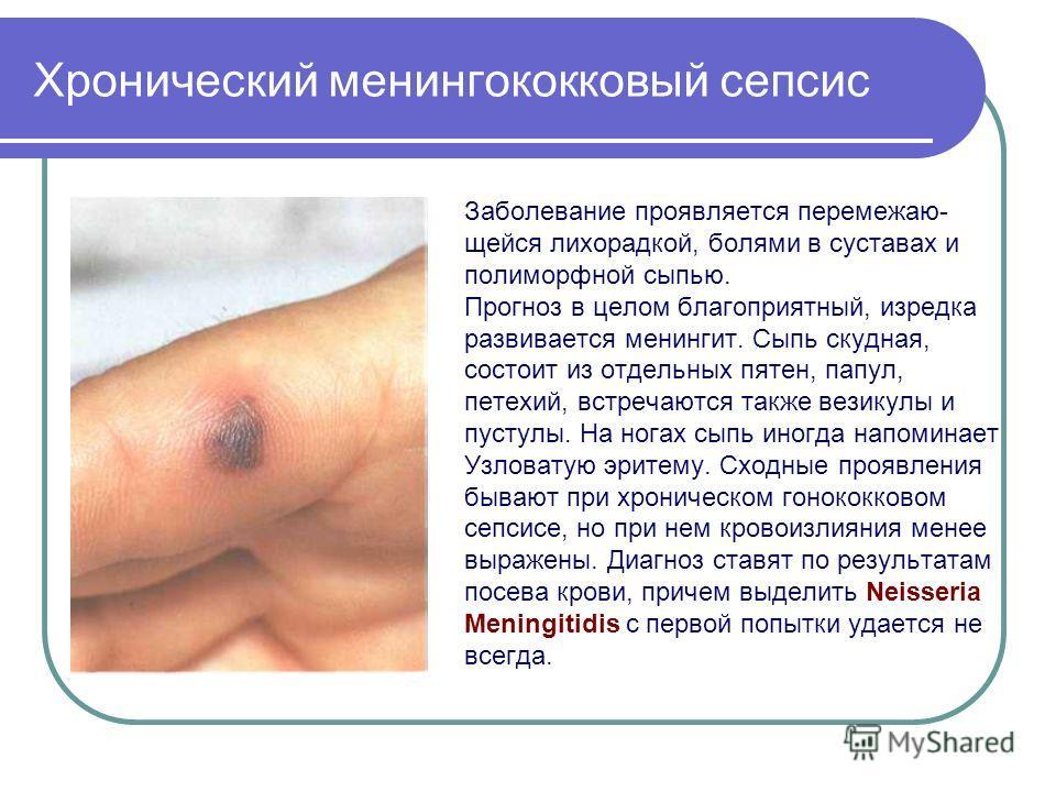 Хронический менингококковый сепсис Заболевание проявляется перемежаю- щейся лихорадкой, болями в суставах и полиморфной сыпью. Прогноз в целом благоприятный, изредка развивается менингит. Сыпь скудная, состоит из отдельных пятен, папул, петехий, встр