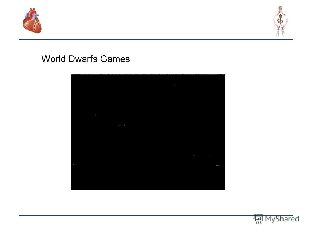 26 World Dwarfs Games