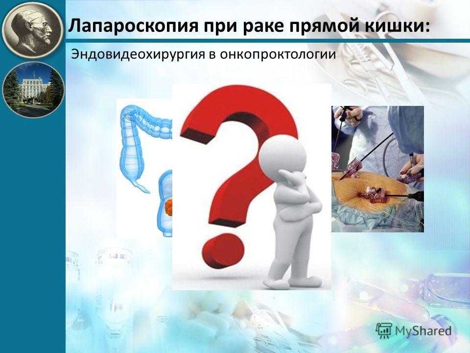 Лапароскопия при раке прямой кишки: Эндовидеохирургия в онкопроктологии +
