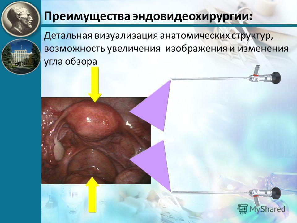 Преимущества эндовидеохирургии: Детальная визуализация анатомических структур, возможность увеличения изображения и изменения угла обзора
