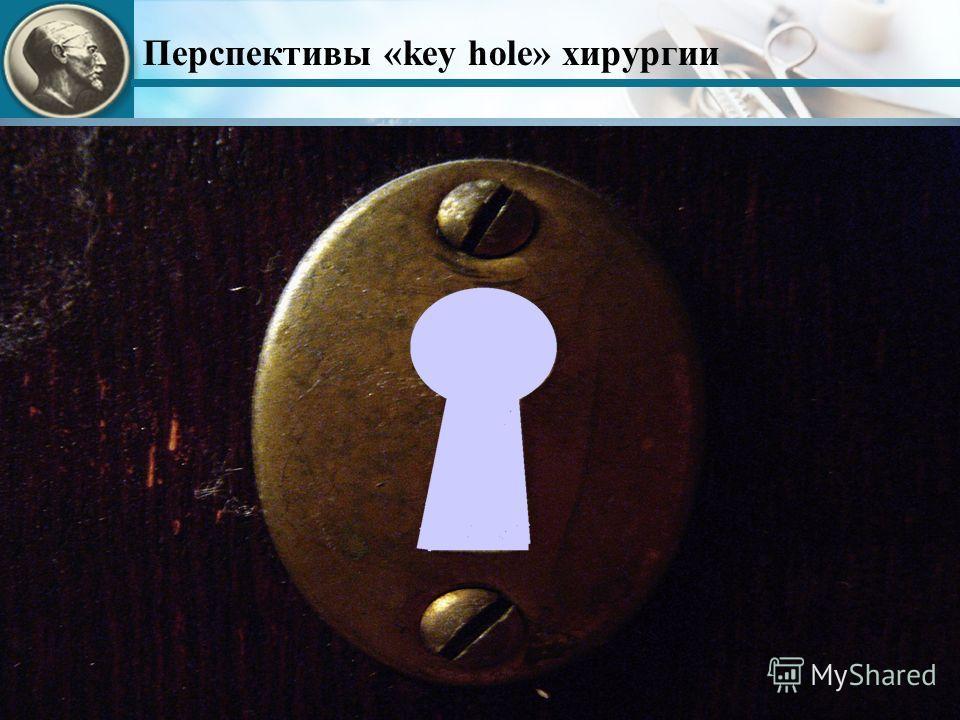 Перспективы «key hole» хирургии