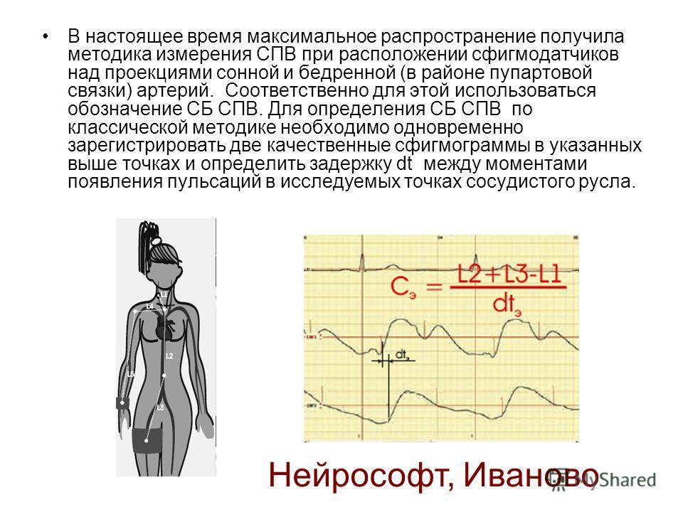 В настоящее время максимальное распространение получила методика измерения СПВ при расположении сфигмодатчиков над проекциями сонной и бедренной (в районе пупартовой связки) артерий. Соответственно для этой использоваться обозначение СБ СПВ. Для опре