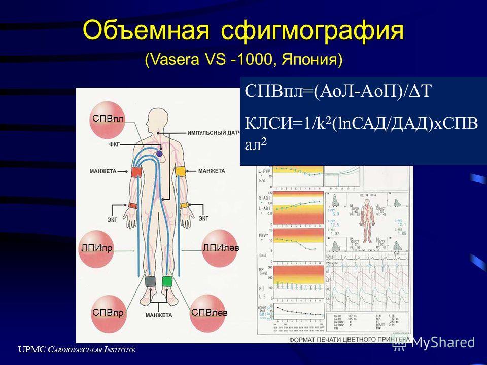 UPMC C ARDIOVASCULAR I NSTITUTE Объемная сфигмография ( (Vasera VS -1000, Япония) СПВпл=(AoЛ-AoП)/ΔT КЛСИ=1/k 2 (lnСАД/ДАД)хСПВ ал 2 ЛПИпрЛПИлев СПВпрСПВлев СПВпл