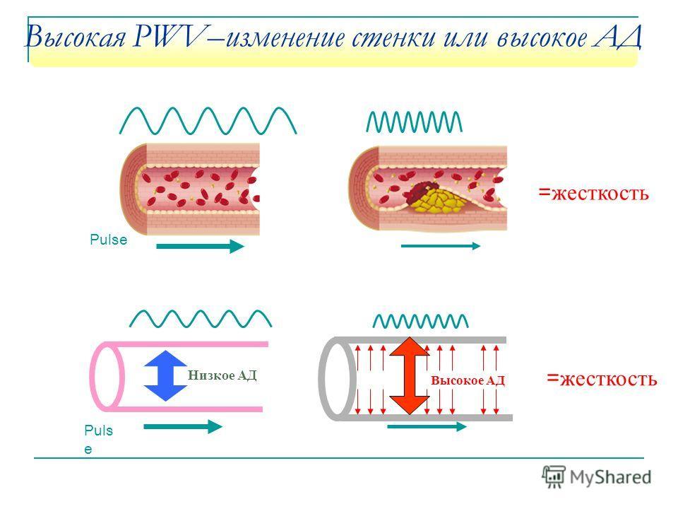 Высокая PWV–изменение стенки или высокое АД Puls e Низкое АД Высокое АД = жесткость Pulse = жесткость