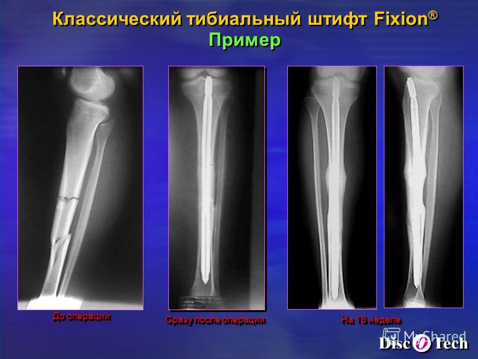 До операции Сразу после операции На 16 неделе Классический тибиальный штифт Fixion ® Пример