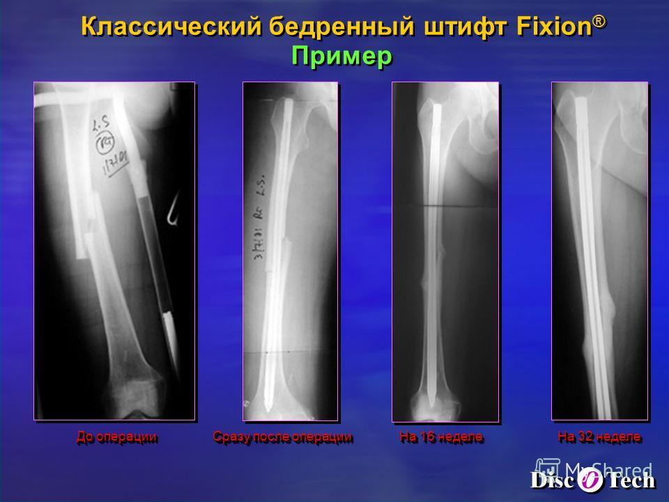 До операции Сразу после операции На 16 неделе Классический бедренный штифт Fixion ® Пример Классический бедренный штифт Fixion ® Пример На 32 неделе