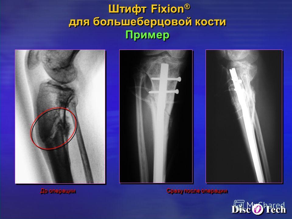 До операции Сразу после операции Штифт Fixion ® для большеберцовой кости Пример Штифт Fixion ® для большеберцовой кости Пример