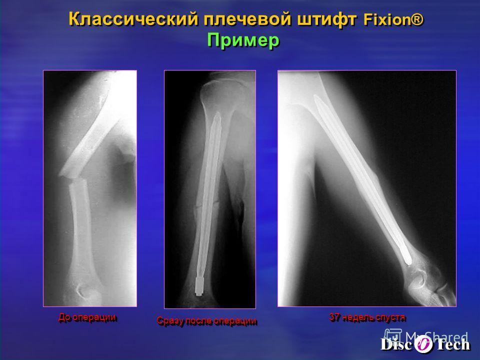 До операции Сразу после операции 37 недель спустя Классический плечевой штифт Fixion® Пример Классический плечевой штифт Fixion® Пример