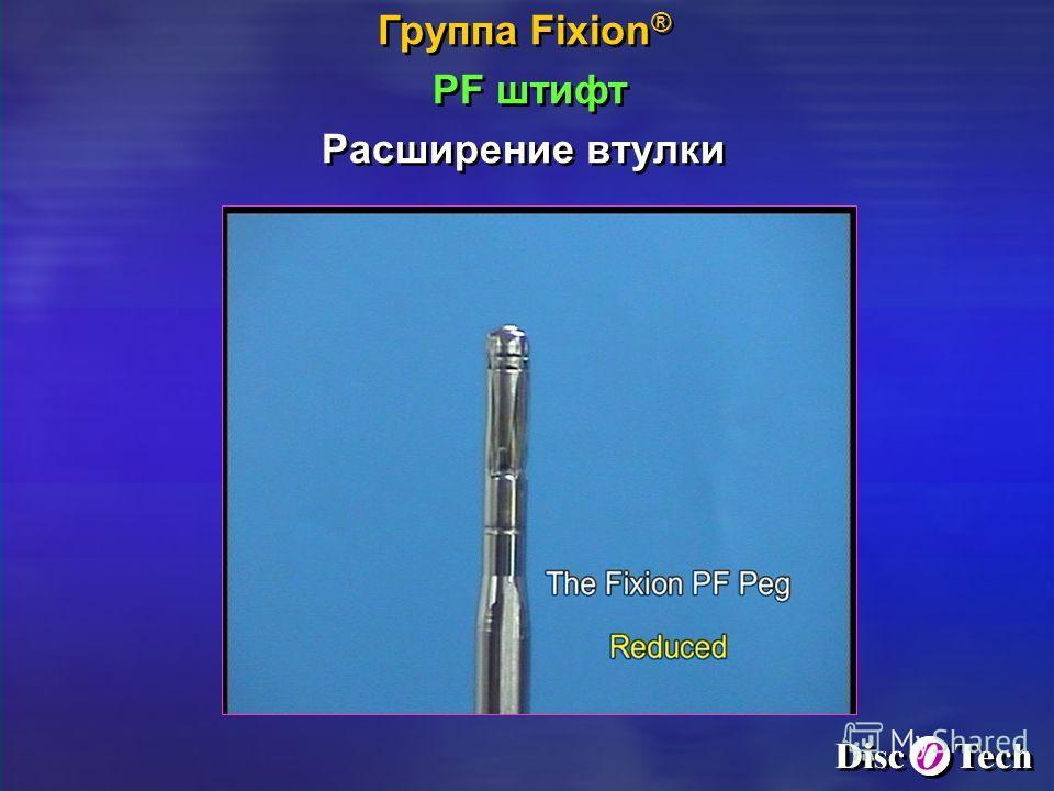 Группа Fixion ® PF штифт Расширение втулки Группа Fixion ® PF штифт Расширение втулки