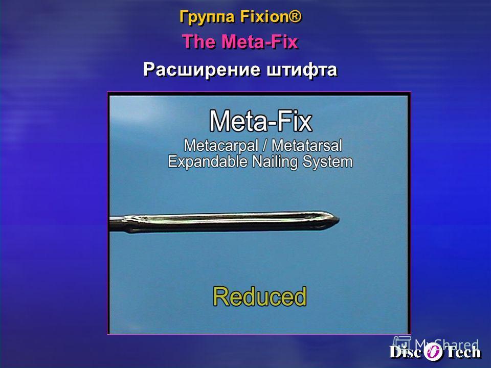Группа Fixion® The Meta-Fix Расширение штифта Группа Fixion® The Meta-Fix Расширение штифта