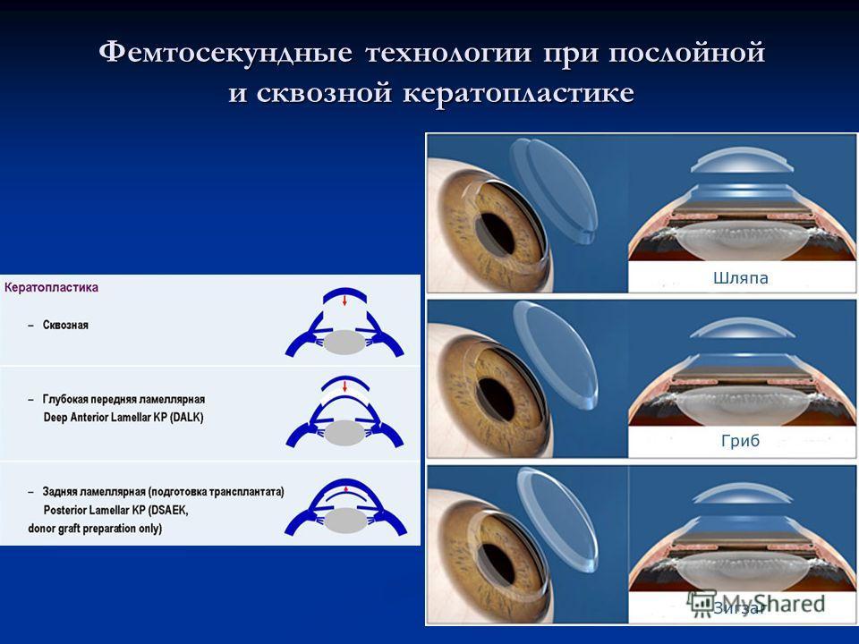 Фемтосекундные технологии при послойной и сквозной кератопластике