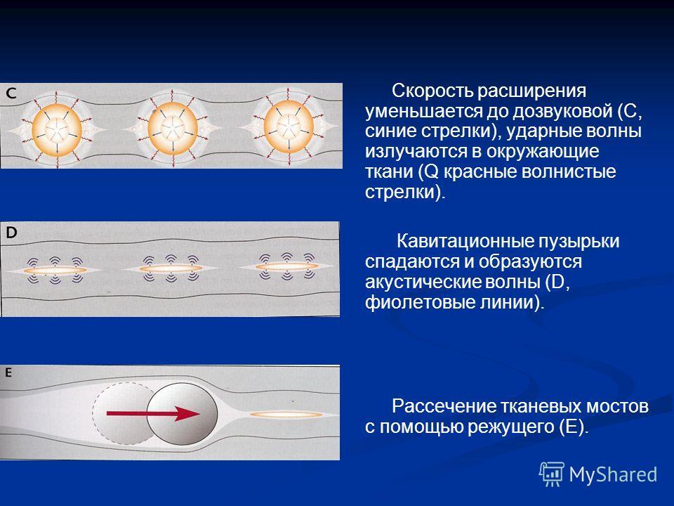 Скорость расширения уменьшается до дозвуковой (C, синие стрелки), ударные волны излучаются в окружающие ткани (Q красные волнистые стрелки). Кавитационные пузырьки спадаются и образуются акустические волны (D, фиолетовые линии). Рассечение тканевых м