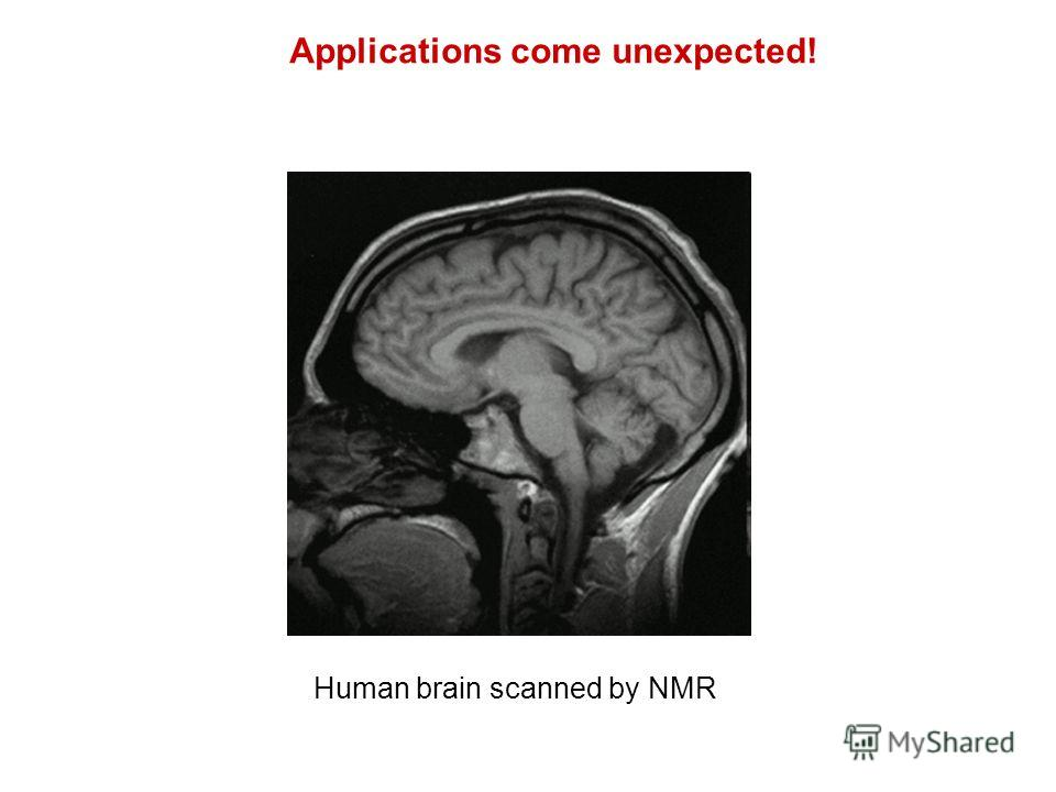 Human brain scanned by NMR Applications come unexpected!