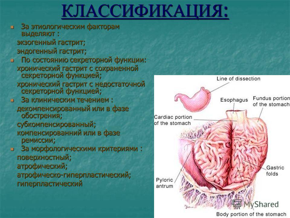 КЛАССИФИКАЦИЯ : За этиологическим факторам выделяют : За этиологическим факторам выделяют : экзогенный гастрит; экзогенный гастрит; эндогенный гастрит; эндогенный гастрит; По состоянию секреторной функции: По состоянию секреторной функции: хронически